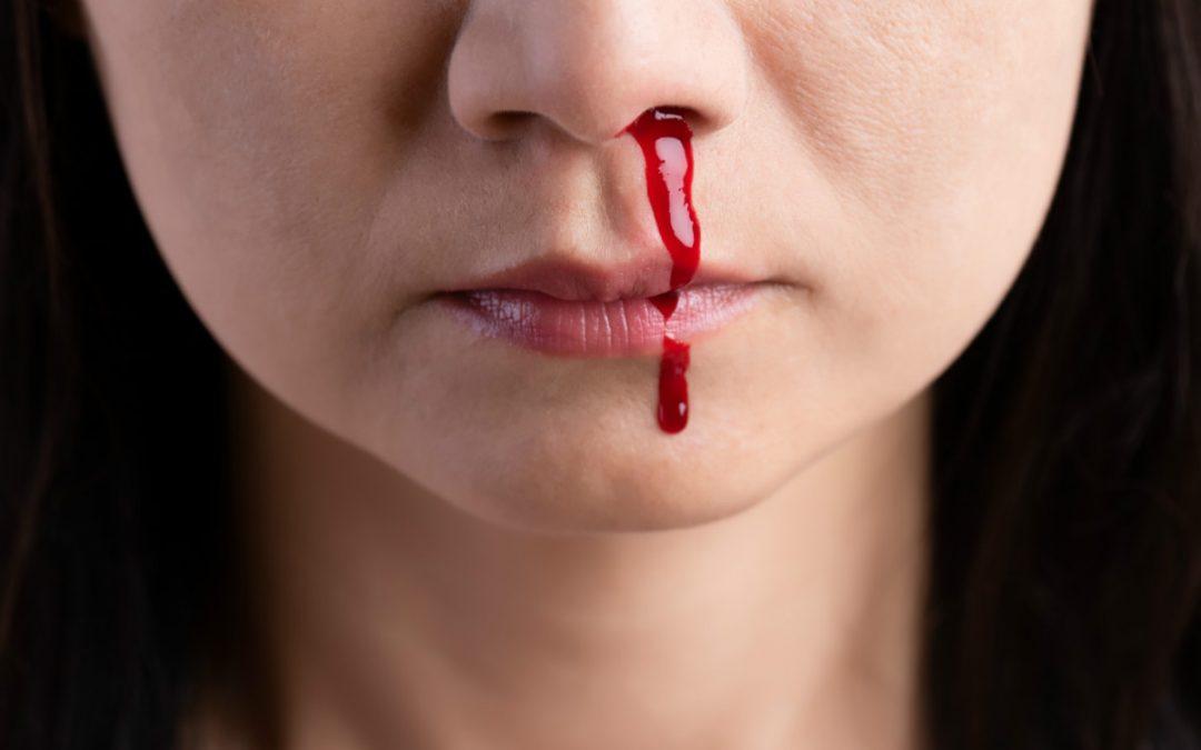 Wat te doen bij bloedneus?